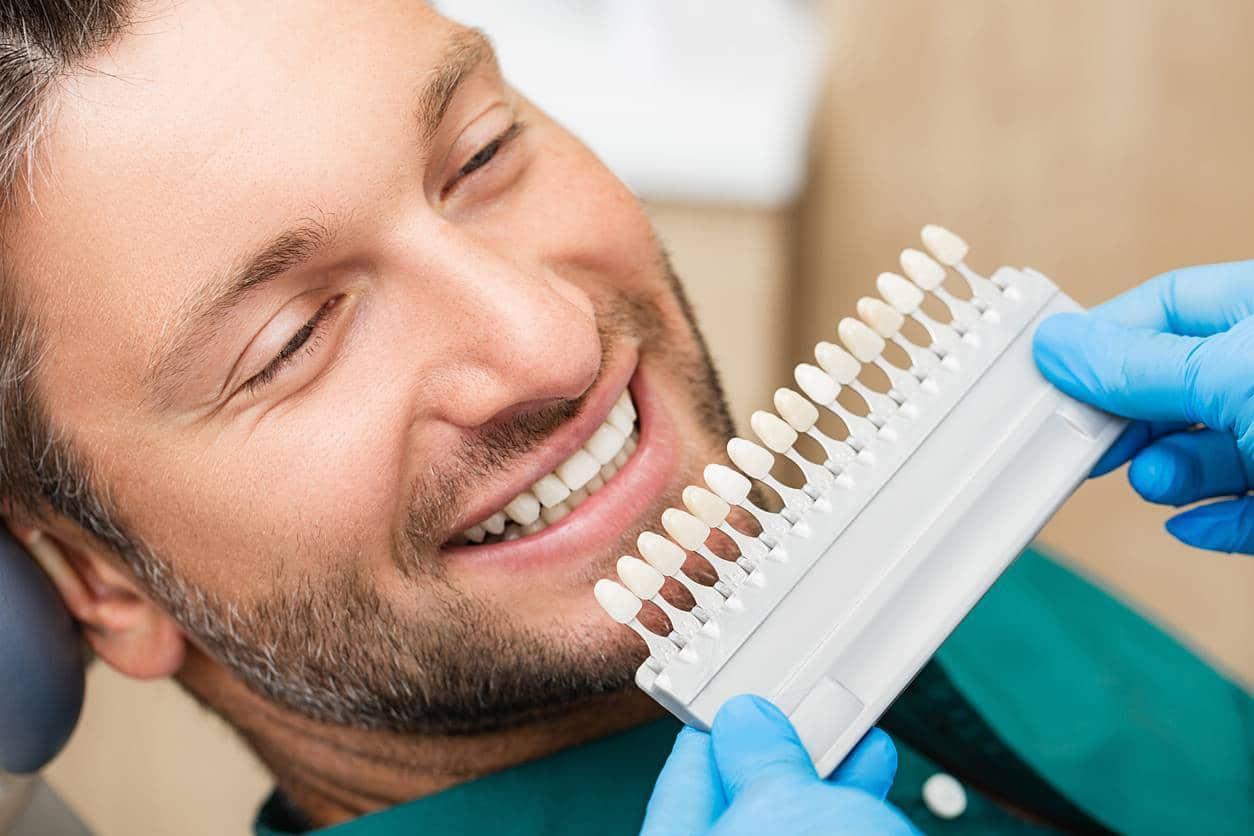le concept des facettes dentaires