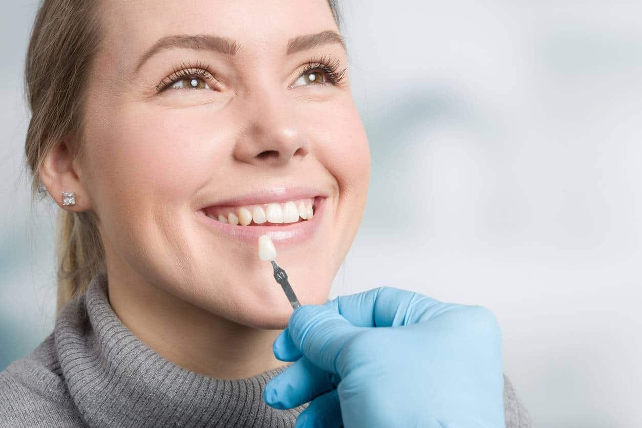 coût d'une facette dentaire